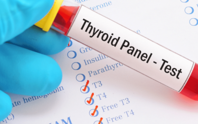 What you didn't know about your Thyroid lab work